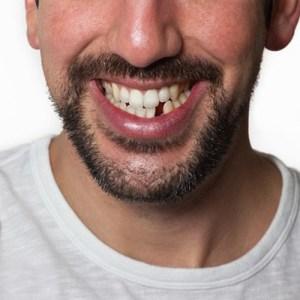 Missing-Tooth.jpg