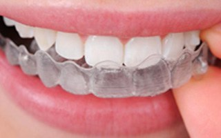 Invisalign - West Maitland Dentistry