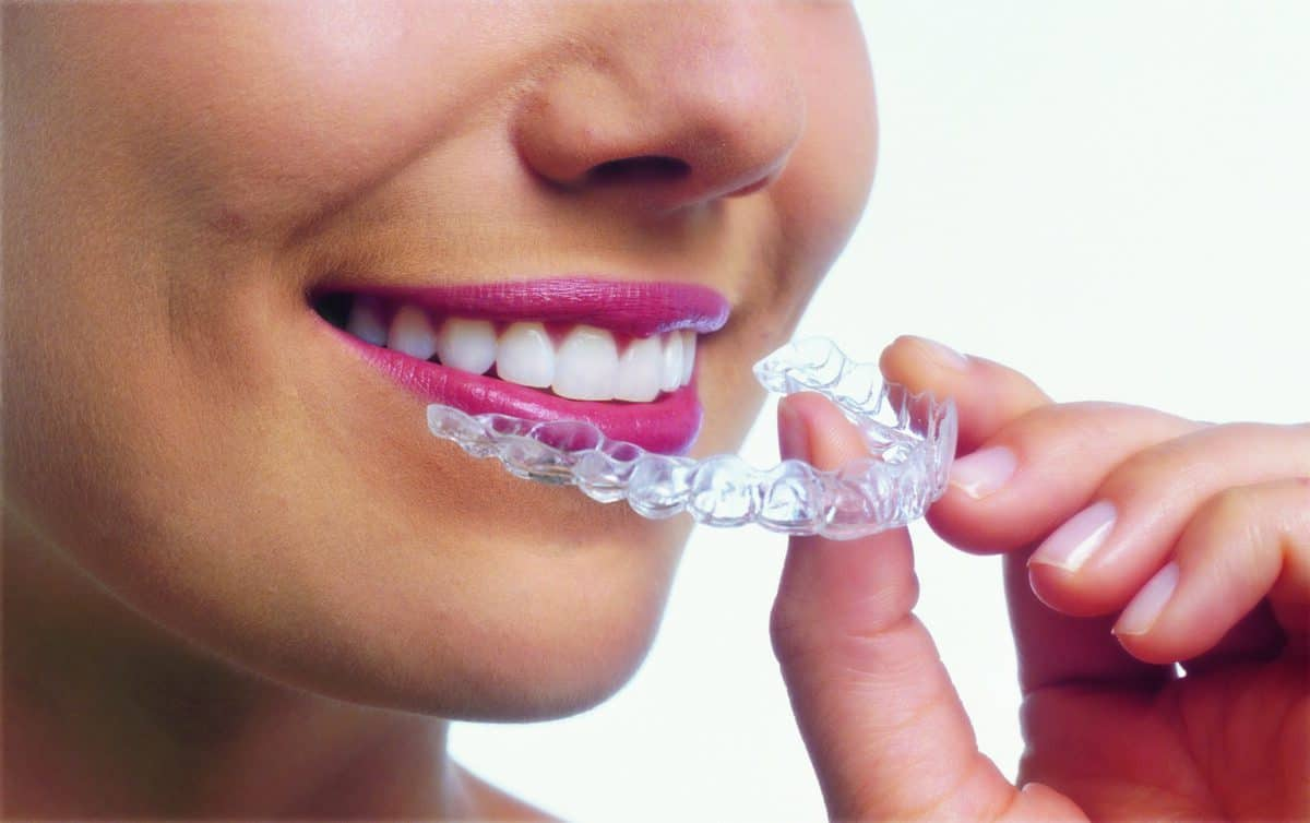 Invisalign-woman-tray-1200x754.jpg